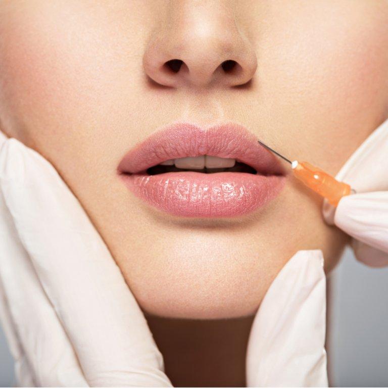 a woman receiving lip filler injections